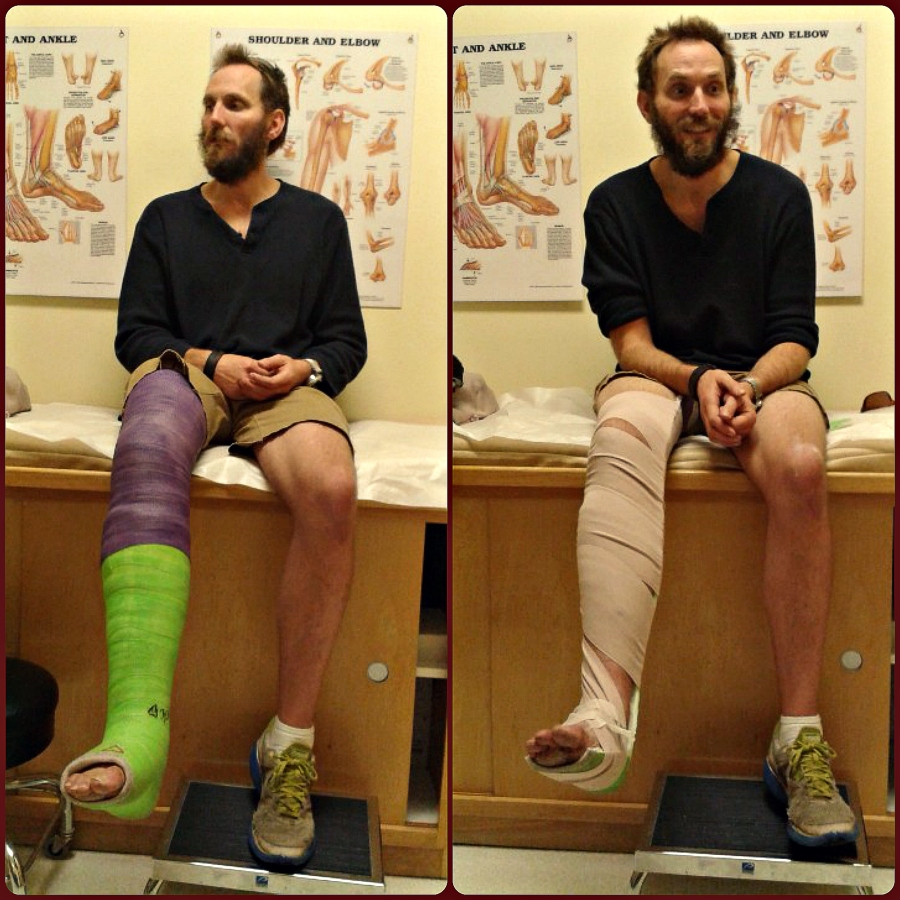 Moose at the doctor's office broken leg | The Lonely Tribalist