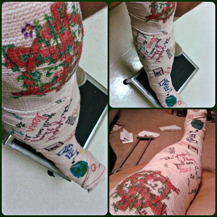 Moose Bandaged Broken Leg | The Lonely Tribalist