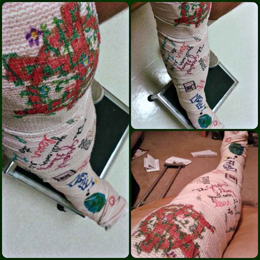 Moose Bandaged Broken Leg   The Lonely Tribalist