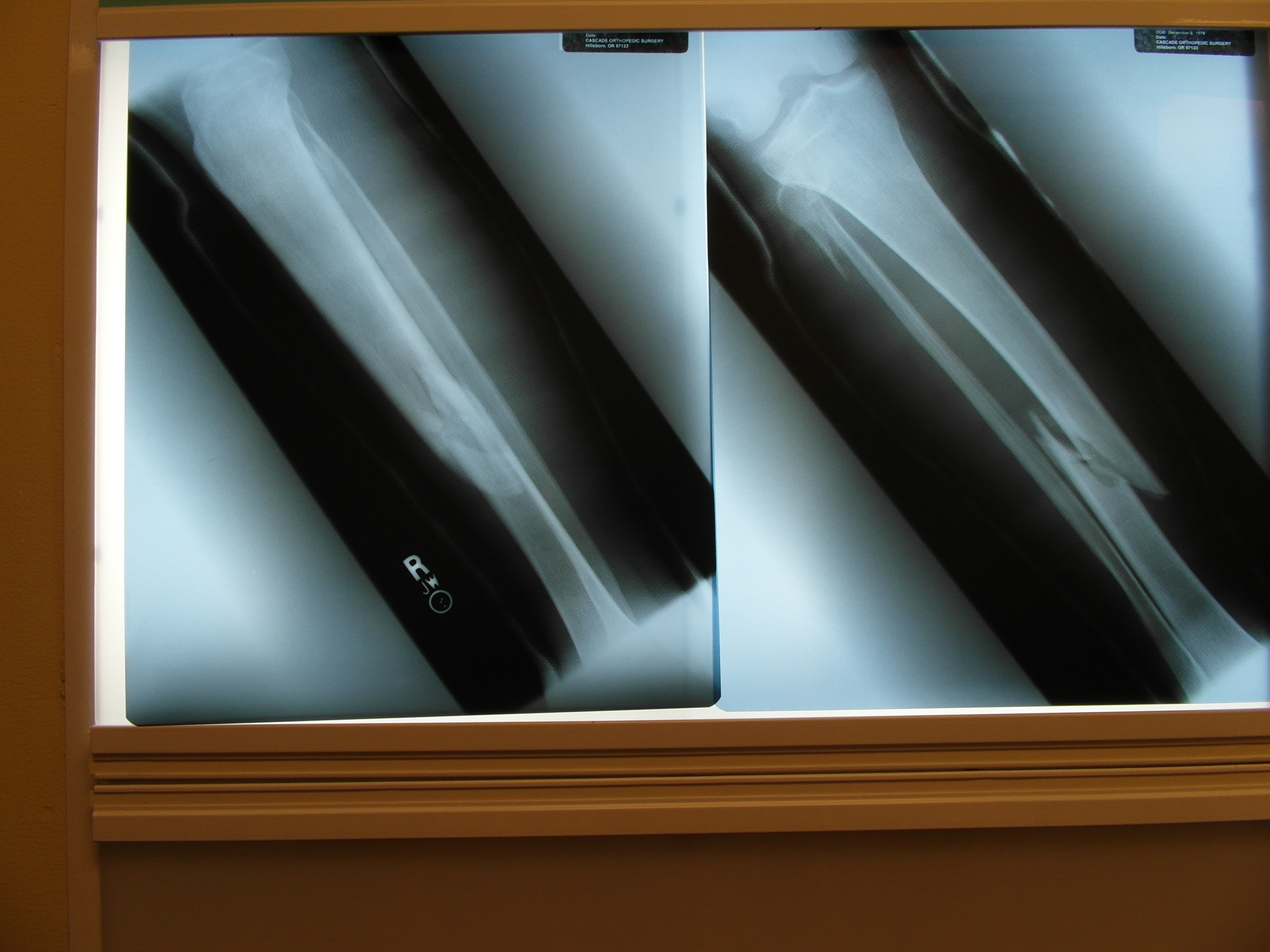 Broken Tibia Fibula X-Ray | The Lonely Tribalist